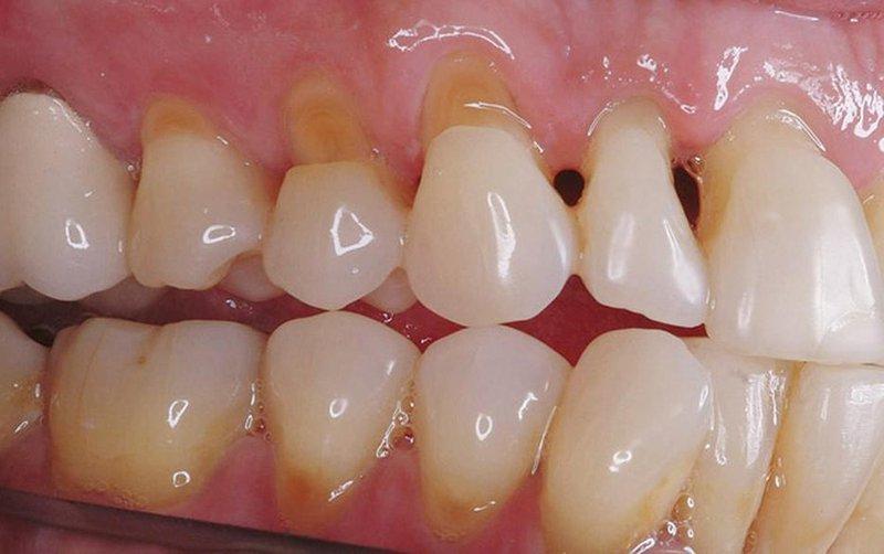 bệnh mòn cổ chân răng - hinh 01